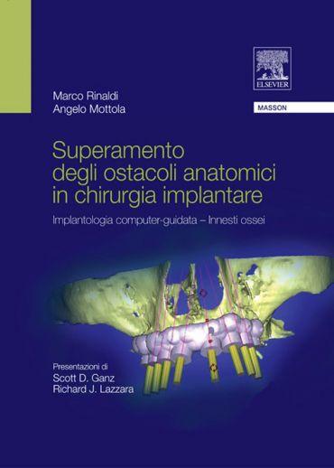 Superamento degli ostacoli anatomici in chiurgia implantare ePub