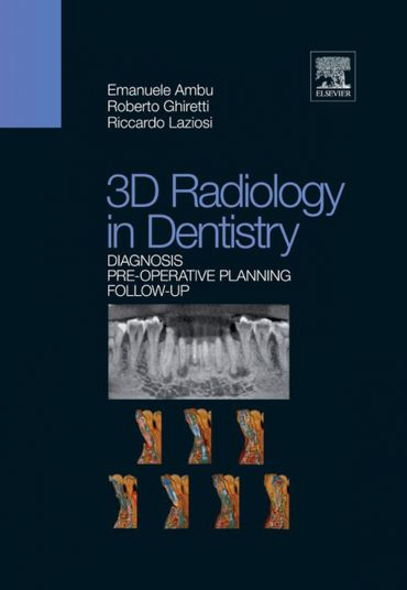 3D Radiology in Dentistry ePub