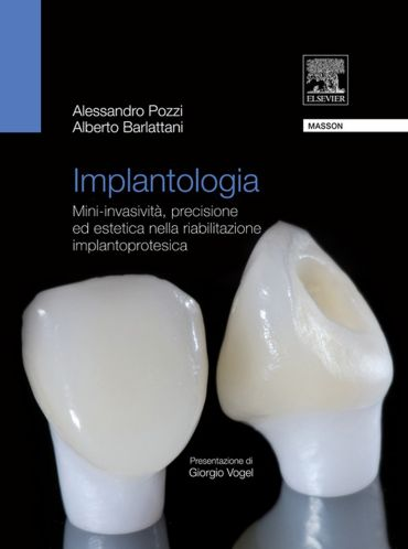 Implantologia ePub